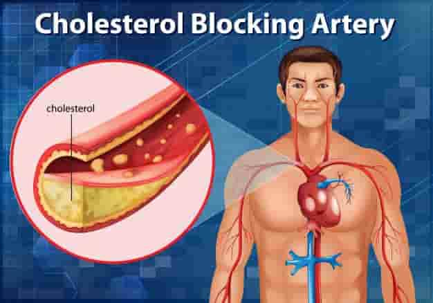 कोलेस्ट्रॉल क्या है, कितना होना चाहिए – कोलेस्ट्रॉल बढ़ने से क्या होता है? - Cholesterol kya hota hai, kitna hona chahiye aur normal range