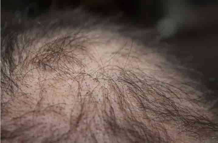 एलोपेसिया का होम्योपैथिक उपचार, इलाज और दवा (Alopecia Treatment in Homeopathy in Hindi)