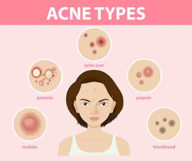 कील-मुँहासों और पिंपल्स के निशान हटाने के लिए घरेलू उपाय, नुस्खे और उपचार (How To Get Rid of Pimple Marks And Scars Naturally in Hindi)