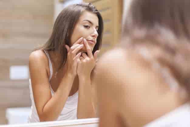 पिंपल्स के लिए घरेलु उपाय, नुस्खे और उपचार (Pimple Remove Tips in Hindi)