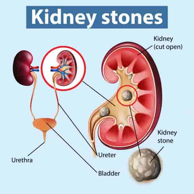 गुर्दे की पथरी का आयुर्वेदिक इलाज, घरेलु उपाय, नुस्खे और उपचार - pathri ka ayurvedic ilaaj (ayurvedic treatment of Kidney stones in hindi)