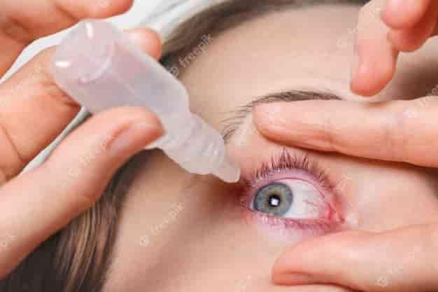 मोतियाबिंद क्या है?, What is Cataract in Hindi, मोतियाबिंद के प्रकार, Types of Cataract in Hindi, मोतियाबिंद के लक्षण, Symptoms of Cataract in Hindi, मोतियाबिंद के कारण, Causes of Cataract in Hindi, मोतियाबिंद का इलाज, Treatment of Cataract in Hindi, मोतियाबिंद से बचाव व रोकथाम, Prevention of Cataract in Hindi,